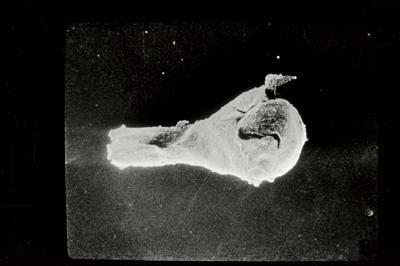 <i><i>Ancyrochitina fragilis</i> | Ancyrochitina cf. fragilis</i><br />Ohesaare borehole, 65.70 m, Kaugatuma Stage ( 754-720)