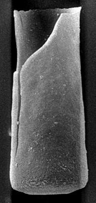 <i><i>Chitinozoa</i> | Conochitina cf. argillophila Laufeld, 1974</i><br />Ohesaare borehole, 159.60 m, Jaagarahu Stage ( 189-23)