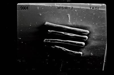 <i><i>Rhabdochitina</i> | Rhabdochitina sp.</i><br />Ruhnu 500 borehole, 392.80 m, Jaagarahu Stage ( 754-550)
