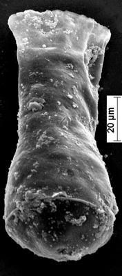 <i><i>Cingulochitina baltica</i></i><br />Staicele 4 borehole, 246.40 m, Jaagarahu Stage ( 350-25)