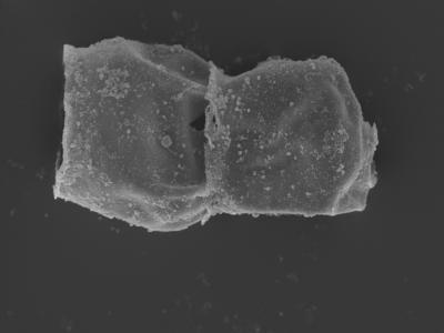 <i><i>Eisenackitina</i>   Eisenackitina sp.</i><br />Kolka 54 borehole, 422.80 m, Jaagarahu Stage ( 754-470)