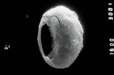 <i><i>Calpichitina opaca</i></i><br />Ohesaare borehole, 342.20 m, Adavere Stage ( 754-893)
