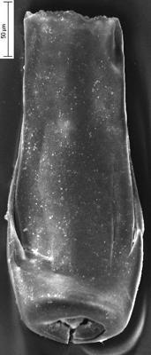 <i><i>Conochitina</i> | Conochitina aff. armillata Taugourdeau et de Jekhowsky, 1960</i><br />Staicele 4 borehole, 274.50 m, Jaani Stage ( 350-19)