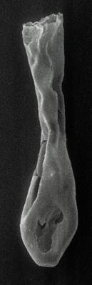 <i><i>Lagenochitina dalbyensis</i></i><br />Rapla borehole, 153.90 m, Idavere Substage ( 190-16)