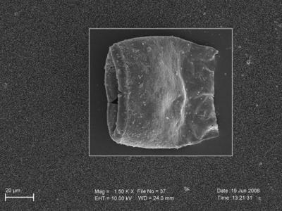 <i><i>Eisenackitina lagenomorpha</i> | Eisenackitina sp. lagenomorpha</i><br />Pavilosta 51 borehole, 775.00 m, Paadla Stage ( 754-270)