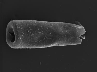 <i><i>Conochitina</i> | Conochitina sp.</i><br />Kolka 54 borehole, 405.50 m, Jaagarahu Stage ( 754-1295)