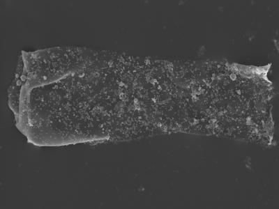 <i><i>Cingulochitina baltica</i></i><br />Kolka 54 borehole, 492.60 m, Jaagarahu Stage ( 754-451)
