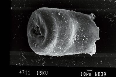 <i><i>Eisenackitina lagenomorpha</i></i><br />Gussev 1 borehole, Kaliningrad oblast, 1385.40 m, Paadla Stage ( 754-70)