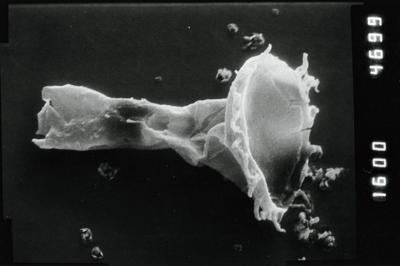 <i><i>Ancyrochitina</i> | Ancyrochitina aff. ansarviensis</i><br />Viki borehole, 148.45 m, Adavere Stage ( 754-1123)