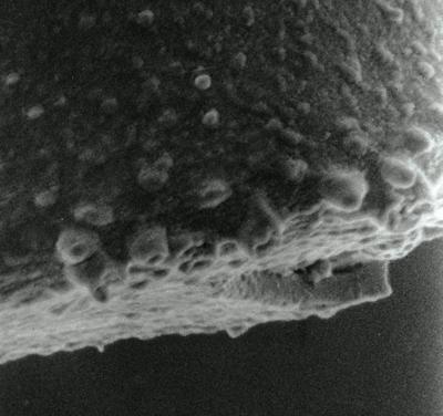 <i><i>Spinachitina coronata</i> | Coronochitina coronata Eisenack, 1931</i><br />Hagudi borehole, 35.50 m, Pirgu Stage ( 306-9)