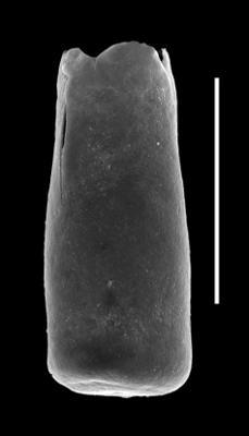 <i><i>Conochitina edjelensis</i></i><br />Paatsalu 527 borehole, 111.50 m, Llandovery ( 493-7)