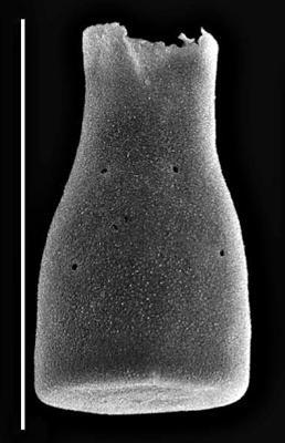 <i><i>Conochitina savalaensis</i></i><br />Rapla borehole, 166.50 m, Kukruse Stage ( 660-1440)