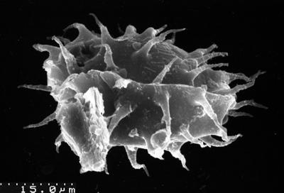 Goniosphaeridium sp., TUG 1536-15
