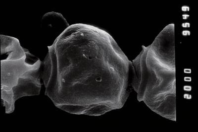 <i><i>Calpichitina densa</i> | Desmochitina densa Eisenack, 1962</i><br />Jaagarahu borehole, 35.70 m, Jaani Stage ( 273-20)