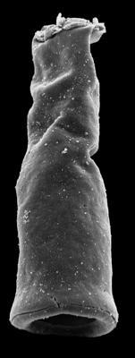<i><i>Chitinozoa</i> | Conochitina sp. A Loydell et al., 2010</i><br />Kolka 54 borehole, 405.50 m, Jaagarahu Stage ( 546-102)