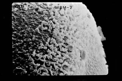 <i><i>Conochitina</i>   Conochitina n. sp. C</i><br />Ohesaare borehole, 185.80 m, Jaagarahu Stage ( 754-652)