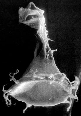<i><i>Ancyrochitina vikiensis</i></i><br />Viki borehole, 147.60 m, Adavere Stage ( 272-27)
