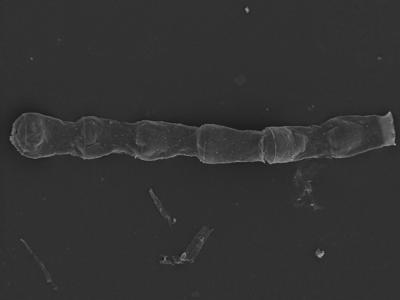 <i><i>Cingulochitina baltica</i></i><br />Kolka 54 borehole, 462.20 m, Jaagarahu Stage ( 754-1236)