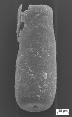 <i><i>Conochitina malleus</i></i><br />Staicele 4 borehole, 316.80 m, Raikküla Stage ( 754-1366)