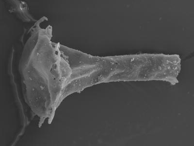 <i><i>Clathrochitina clathrata</i> | Clathrochitina cf. clathrata</i><br />Ohesaare borehole, 162.00 m, Jaagarahu Stage ( 754-337)