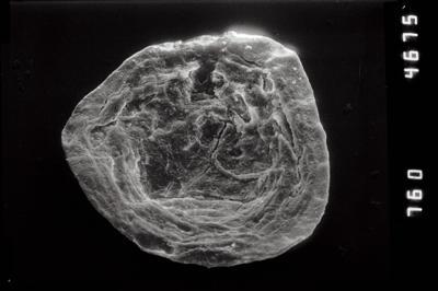 <i><i>Pterochitina macroptera</i></i><br />Pulli 2 borehole, 20.70 m, Jaani Stage ( 754-1111)