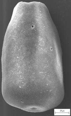 <i><i>Eisenackitina dolioliformis</i></i><br />Staicele 4 borehole, 298.20 m, Adavere Stage ( 754-1372)