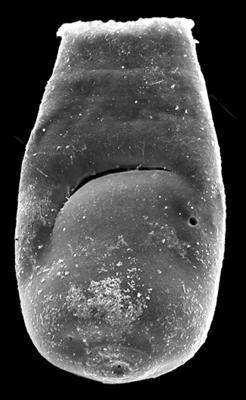 <i><i>Bursachitina nestorae</i></i><br />Kolka 54 borehole, 596.90 m, Adavere Stage ( 546-34)