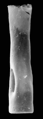 <i><i>Conochitina claviformis</i></i><br />Pavilosta 51 borehole, 804.30 m, Gorstian ( 576-14)