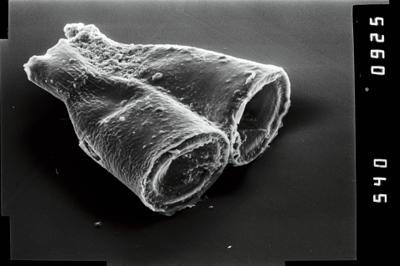 <i><i>Cyathochitina</i> | Cyathochitina cf. calix</i><br />Ruhnu 500 borehole, 579.00 m, Raikküla Stage ( 754-1019)