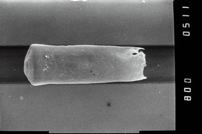 <i><i>Conochitina argillophila</i></i><br />Ohesaare borehole, 161.20 m, Jaagarahu Stage ( 754-1197)