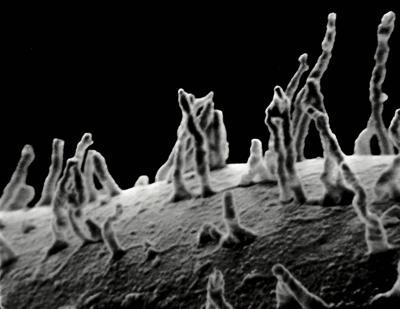 <i><i>Angochitina curvata</i></i><br />Udriku 3329 borehole, 63.70 m, Idavere Substage ( 359-1)