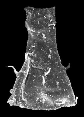 <i><i>Ramochitina ruhnuensis</i></i><br />Kolka 54 borehole, 575.00 m, Adavere Stage ( 546-39)