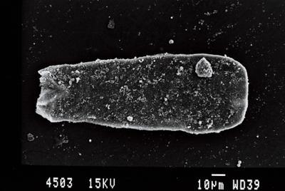 <i><i>Conochitina cribrosa</i> | Conochitina cribrosa?</i><br />Gussev 1 borehole, Kaliningrad oblast, 1478.10 m, Rootsiküla Stage ( 754-2)