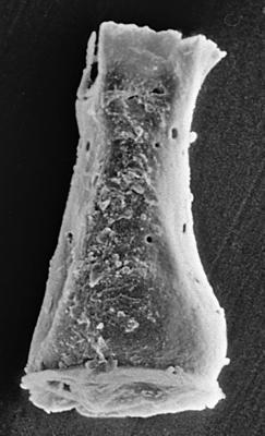 <i><i>Cingulochitina cingulata</i></i><br />Ruhnu 500 borehole, 344.50 m, Jaagarahu Stage ( 272-190)