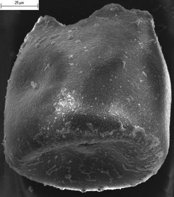 <i><i>Eisenackitina</i> | Eisenackitina sp.</i><br />Ikla borehole, 294.00 m, Jaani Stage ( 350-10)