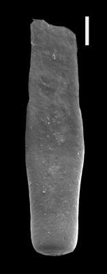 <i><i>Chitinozoa</i> | Rhabdochitina sp.1</i><br />Ventspils D-3 borehole, 404.00 m, Přidoli ( 607-18)