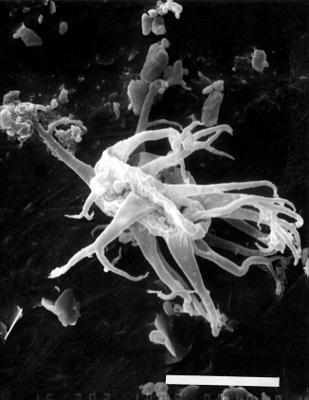 Multiplicisphaeridium bifurcatum Staplin, Jansonius et Pocock, 1965, GIT 344-193