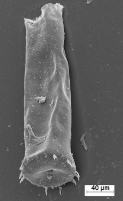 <i><i>Spinachitina maennili</i></i><br />Staicele 4 borehole, 428.00 m, Raikküla Stage ( 754-1370)