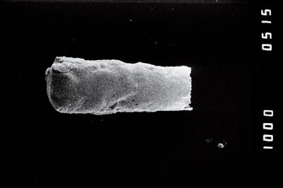 <i><i>Conochitina argillophila</i></i><br />Ohesaare borehole, 161.70 m, Jaagarahu Stage ( 754-1200)