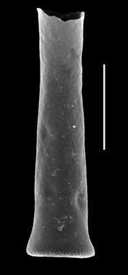 <i><i>Euconochitina electa</i></i><br />Paatsalu 527 borehole, 113.67 m, Llandovery ( 493-6)