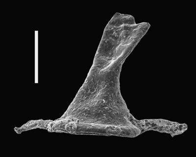 <i><i>Ancyrochitina lemniscata</i></i><br />Ventspils D-3 borehole, 296.00 m, Přidoli ( 607-65)