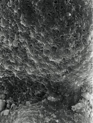 <i><i>Desmochitina nodosa</i></i><br />Rapla borehole, 128.00 m, Keila Stage ( 190-14)
