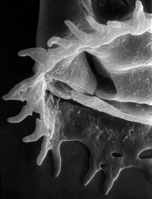 <i><i>Anthochitina primula</i></i><br />Viki borehole, 140.10 m, Adavere Stage ( 272-30)