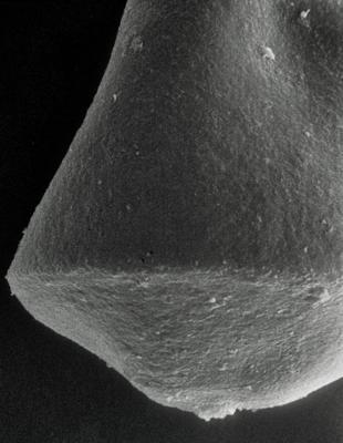 <i><i>Linochitina</i> | Linochitina sp.</i><br />Rapla borehole, 182.60 m, Kunda Stage ( 190-25)