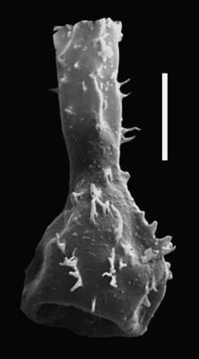 <i><i>Chitinozoa</i> | Ramochitina sp. 3</i><br />Ohesaare borehole, 13.95 m, Kaugatuma Stage ( 607-69)