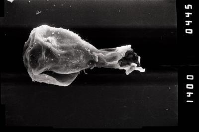 <i><i>Sphaerochitina</i> | Sphaerochitina sp.</i><br />Ohesaare borehole, 161.20 m, Jaagarahu Stage ( 754-1214)