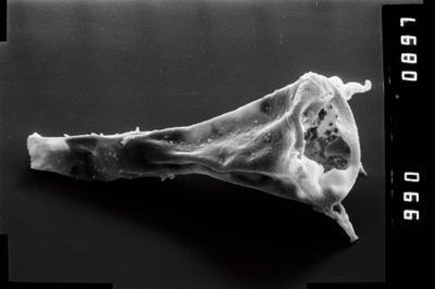 <i><i>Ancyrochitina</i> | Ancyrochitina aff. clathrospinosa</i><br />Vängla trench,  m, Adavere Stage ( 754-1950)