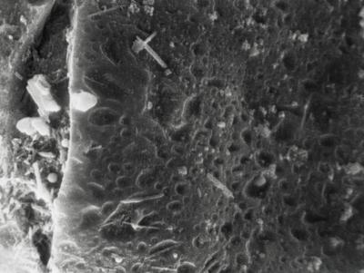 <i><i>Eremochitina</i> | Eremochitina sp.</i><br />Suhkrumägi outcrop,  m, Hunneberg Stage ( 359-11)
