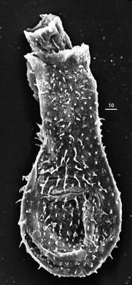 <i><i>Angochitina longicollis</i></i><br />Aispute 41 borehole, 949.85 m, lower Silurian ( 345-24)