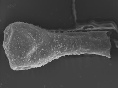 <i><i>Sphaerochitina lycoperdoides</i></i><br />Ohesaare borehole, 147.60 m, Rootsiküla Stage ( 754-360)